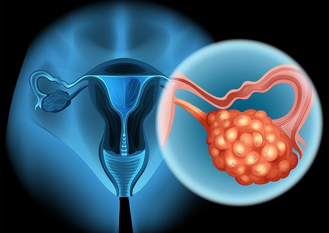 The Ovarian Cancer In Women
