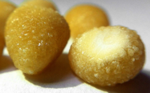 Things You Need To Know About Kidney Stones As Cystine