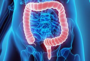 Woman Cancer As Colon and Rectal Cancer